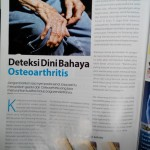 Bahaya osteoarthritis dan solusinya