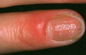 deteksi awal penyakit melalui kuku bergelombang