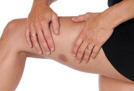 penyebab lebam biru di badan bagian kulit kaki paha pada anak