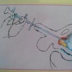 Bagaimana gejala penyakit batu saluran kemih